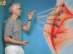 Rugschouder-massage met harde bal
